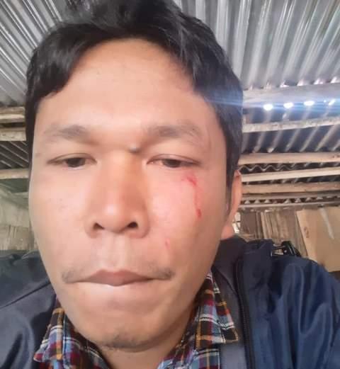 Staf KSPPM, Rocky Pasaribu dipukul oleh aparat kepolisian (HetaNews.com)